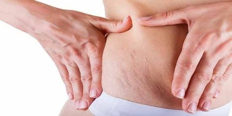 How To Eradicate Stretch Marks! | Health | Scoop.it