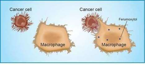 Iron nanoparticles make immune cells attack cancer | Amazing Science | Scoop.it