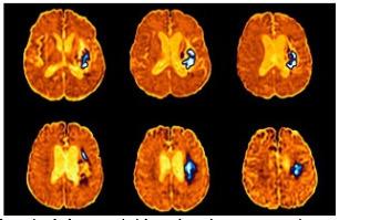 AVC: Vite redonner avec un masque, de l'oxygène au cerveau | Cerveau intelligence | Scoop.it