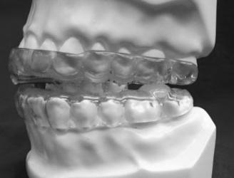 Best Treatment for Snoring and Sleep Apnea   Best Dentist in Kanata   Scoop.it