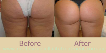 Why One Gets Affected By A Cellulites | Cellulite Treatments Melbourne | Scoop.it