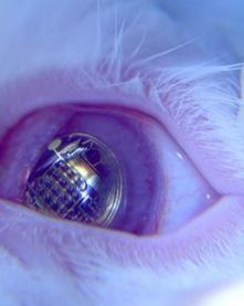 View e-mails with Bionic contact lenses | Tech News N Updates | Scoop.it
