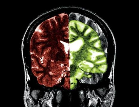 Are Alzheimer's and diabetes the same disease? | Children Family and Community | Scoop.it