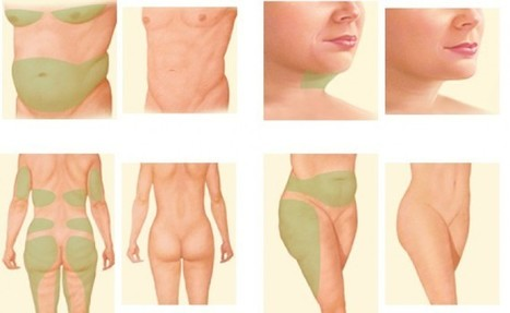 Scared of putting on weight after undergoing liposuction? Read on ! | Skin, Aesthetic & Cosmetic Clinic in Delhi | Scoop.it