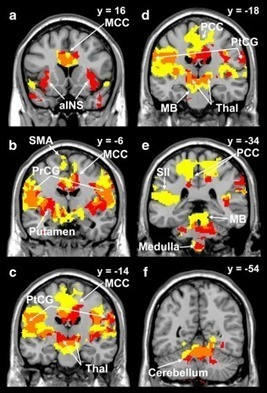 Coughing Is Linked to Perception of Temperature in the Brain   Amazing Science   Scoop.it
