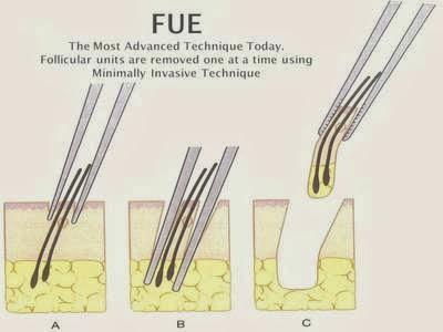 FUE Hair Transplant in Dubai   Hair Transplant Dubai   Scoop.it