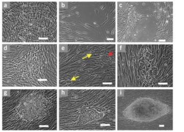 Reprogramming human fibroblasts to pluripotency using modified mRNA | SynBioFromLeukipposInstitute | Scoop.it