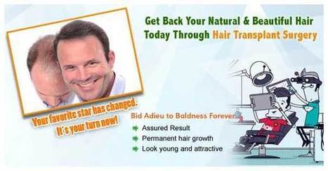 Get high quality hair transplant in Kolkata at cost-effective rates | A Guide to Hair Transplant | Scoop.it