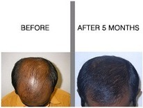 Hair Transplantation Surgery | | Hair Treatments | Scoop.it