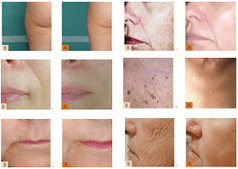 CO2 Laser Skin Care in NYC by Dr. Halaas | Facial Plastic Surgeon | Scoop.it