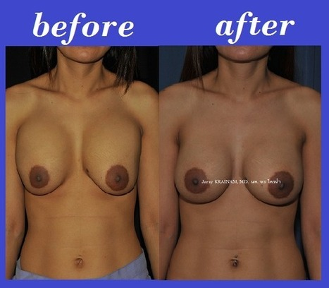 Bangkok Aesthetic Surgery Center: Revised Breast Augmentation(Malposition) Before And After Photos | Best Plastic Surgery Thailand | Scoop.it