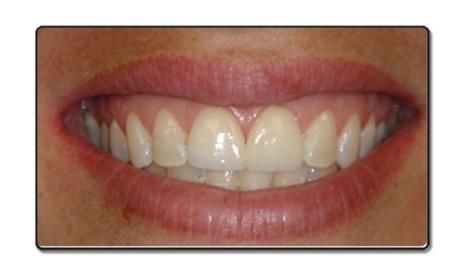 Family Dentistry Turlock CA, Dental Office in California - Dr Steven K Huh DDS | Effective Endodontic Treatments | Scoop.it
