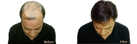 Hair Loss Treatment Basic Information   Royal Cosmetic Surgery   Scoop.it