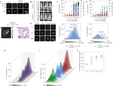 Tracking the dynamics of circulating tumour cell phenotypes using nanoparticle-mediated magnetic ranking | Project Virtual Tumor Cancer in silico and Alternative Cancer Therapies | Scoop.it