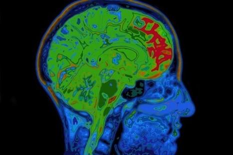 Researchers Develop Brain-Mimicking Nano Memory Cell | Neurological Disorders | Scoop.it