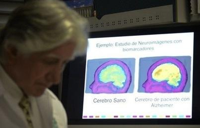 Quelles sont les pistes de traitement de la maladie d'Alzheimer? | Maladie d'Alzheimer | Scoop.it
