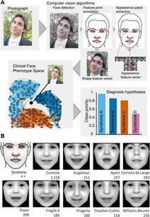 Un logiciel pour détecter les maladies génétiques à partir d'une simple photo   Santé et protection sociale de demain   Scoop.it