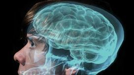 What evil lurks in the brain? German neurologist says he's found a 'dark patch' | Quite Interesting News | Scoop.it