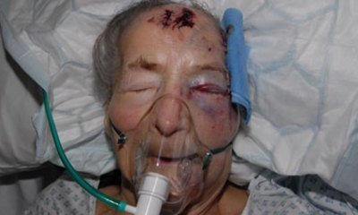 Grandmother, 94, Beaten At Home As She Slept | Race & Crime UK | Scoop.it