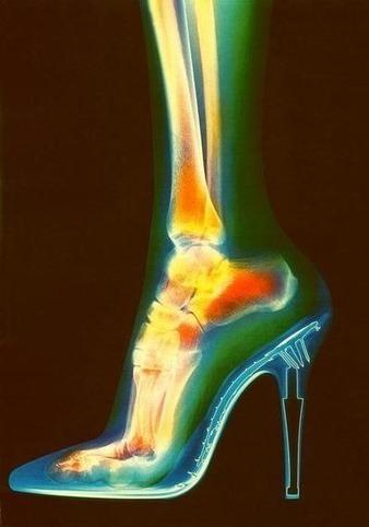 Foot and Ankle Pain from Heels   eFootAndAnkle   eFootandankle   Scoop.it