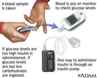 Exercise - Exercise's Effects on Diabetes | Exercise Physiology Homepage | Scoop.it