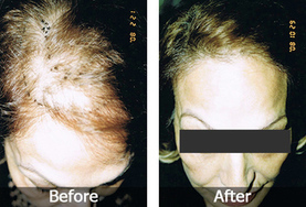 Miraculous Hair Transplant Treatments   Royal Cosmetic Surgery   Scoop.it