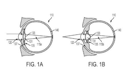 La lentille brevetée de Google va s'injecter dans votre globe oculaire | Marketing Innovation | Scoop.it