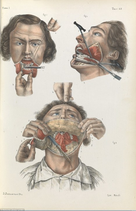 Brutal Medical Diagrams Reveal Horrors Of 19th-Century Surgery | this curious life | Scoop.it