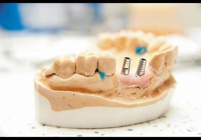 10 implant trends you need to know | Dental Products Report | Dental Implants | Scoop.it