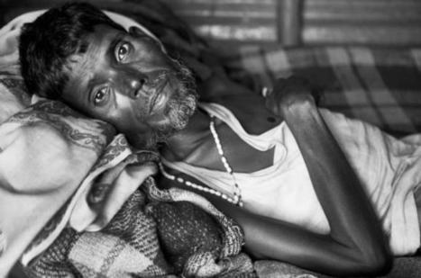 India losing the battle against TB? | Media Fellowships for reporting on TB | Scoop.it