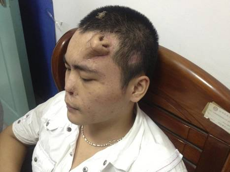 Xiaolian: Chinese man grows new nose for transplant on his forehead | The daily digest | Scoop.it
