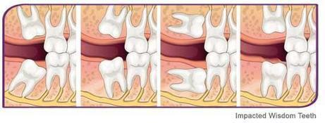 Wisdom Teeth Removal and Extraction | Healthy Smiles | HealthySmiles Dental Group | Scoop.it