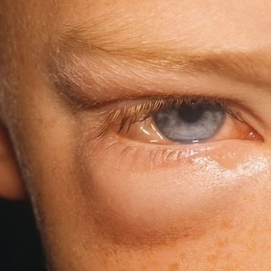 Spring/Summer | Harmful effects of tanning beds | Scoop.it