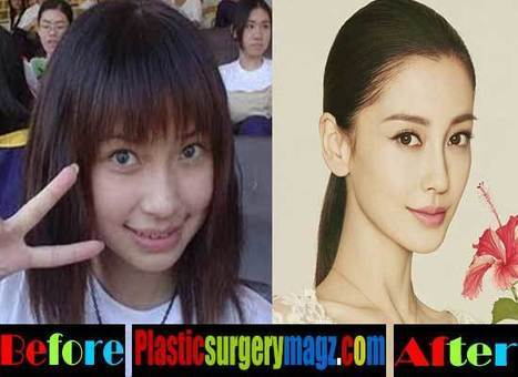 Angelababy Plastic Surgery Before After Pictures | Celebrity Plastic Surgery News | Scoop.it