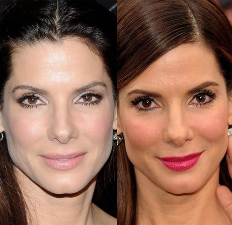 Did Sandra Bullock Have Plastic Surgery? Nose Job & Dermal Fillers Facts | Celebrity Plastic Surgery | Scoop.it
