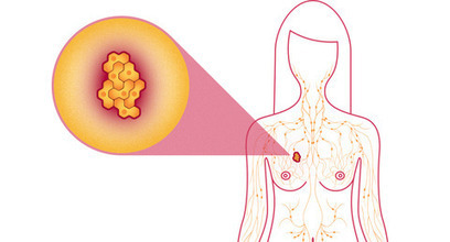 What is Ductal Carcinoma in Situ of the Breast? | My Scoops | Scoop.it