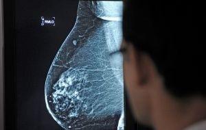 Un fármaco mejora un 34% la supervivencia de un cáncer de mama | Lab | Scoop.it