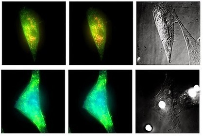 Engineers Put the 'Squeeze' on Human Mesenchymal Stem Cells | Stem Cells | Scoop.it