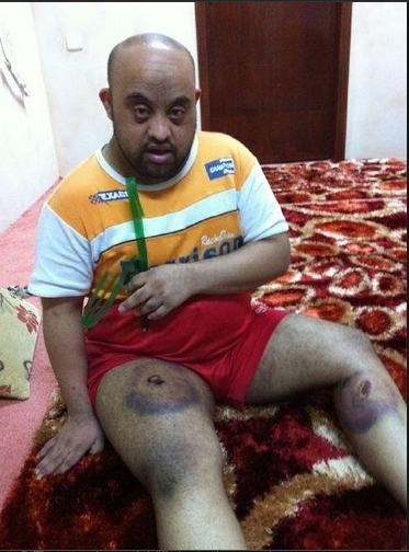 Challenged with Downs syndrome, but undaunted by Al-Khalifa & SF's ....BRAVE! | Human Rights and the Will to be free | Scoop.it