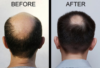 Get Hair Transplant Therapy for Better Results   Royal Cosmetic Surgery   Scoop.it