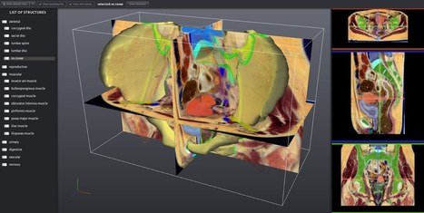 Real Human Anatomy Data that Anyone Can Annotate | Medical Engineering = MEDINEERING | Scoop.it