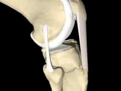 ¿Qué son los ligamentos? | Anatomía General | Scoop.it