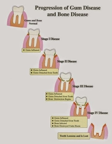 #Periodontitis is a chronic infection which affects #gums and the bones that… | DENTAL TOURISM | Scoop.it