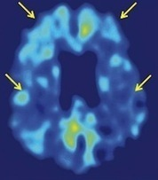 Tools identify cognitive decline earlier | UC Health | Glutathione | Scoop.it