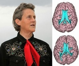 Researchers reveal first brain study of Temple Grandin — | Mom Psych | Scoop.it