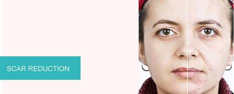 Guaranteed Acne Scar Removal Treatment | Aman Agarwal | Scoop.it