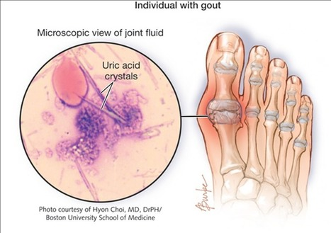 7 foods that prevent Gout | Àcid úric-Gota | Scoop.it