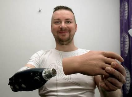 La Jornada: Austriacos crean mano biónica con mayores ventajas que un injerto | Ciencias | Scoop.it