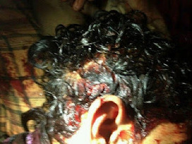 March 2: Clinical death to protester after direct shot of tear gas | Bahrain Center for Human Rights | Human Rights and the Will to be free | Scoop.it