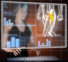 Blog del Dr. Villamor: Recuperación tras una artroplastia de cadera: cuanto antes mejor | Health and Medicine | Scoop.it